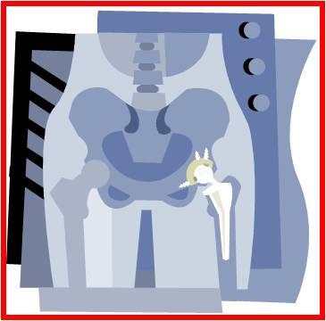 prothèse de hanche